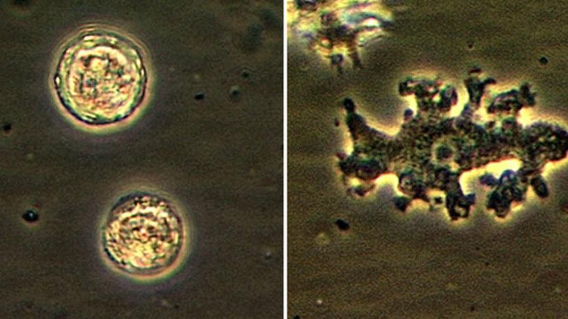 Balamuthia mandrillari to powszechnie występująca ameba, która może wniknąć do naszego organizmu /Fot. CDC /materiały prasowe