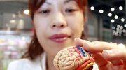 Bez mózgu da się żyć