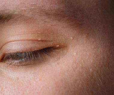 Białe grudki na twarzy - przyczyny powstawania, usuwanie