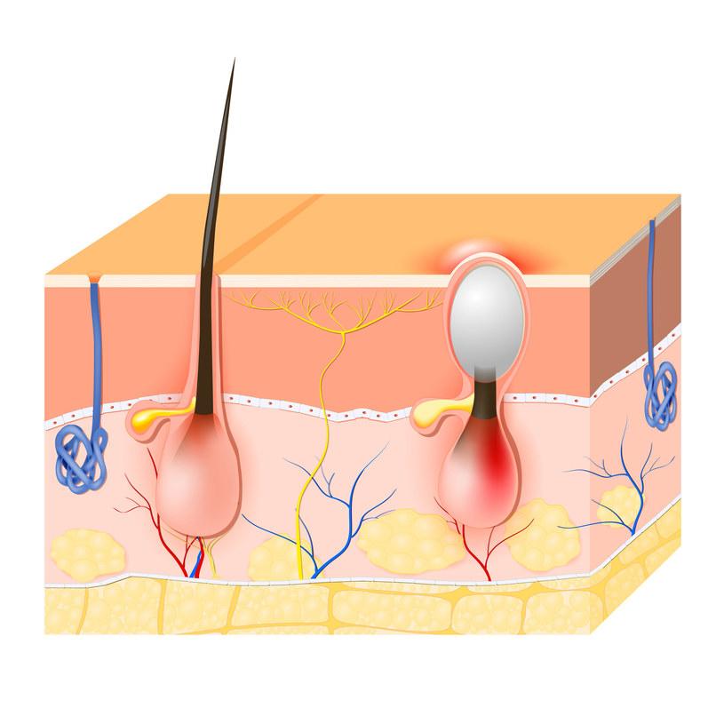 Białe zaskórniki to czopy blokujące mieszki włosowe i gruczołów łojowych