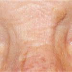 Białka oczu mężczyzny zmieniły kolor na niebieski