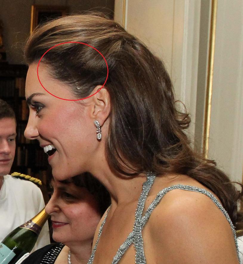 Blizna księżnej Kate /Getty Images