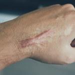 Bliznowce: Przyczyny powstawania i metody usuwania