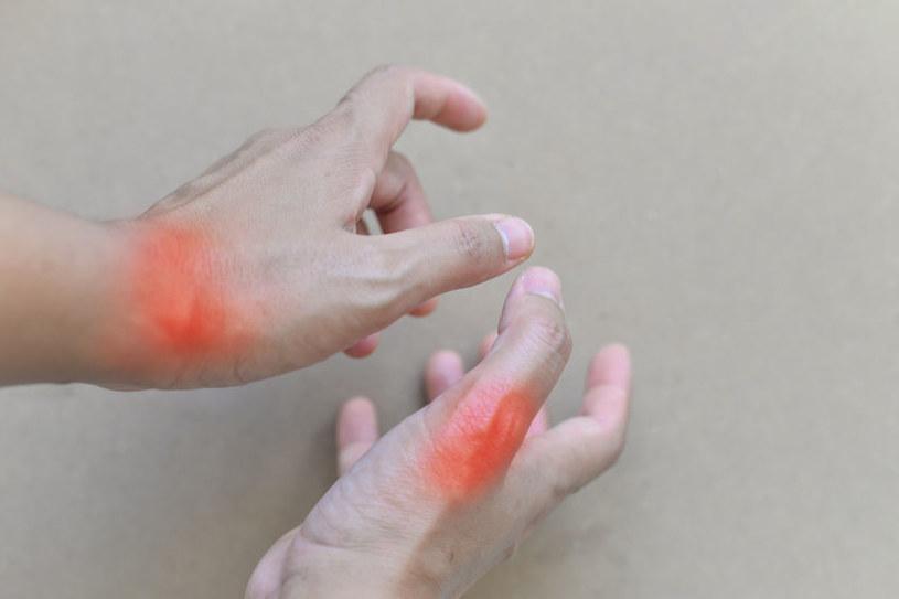 Ból i opuchlizna stawów to pierwsze objawy choroby /123RF/PICSEL
