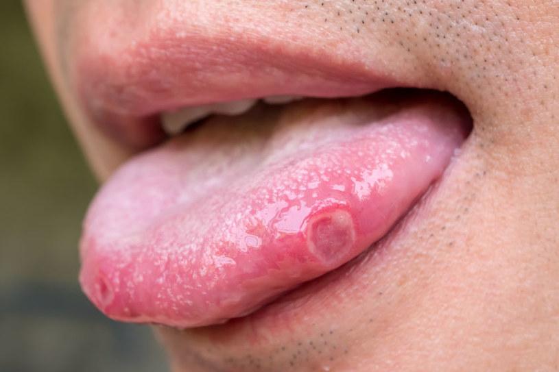 Ból i pieczenie języka /©123RF/PICSEL