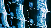 Ból kręgosłupa: w którym miejscu, co oznacza?