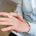 Bóle reumatyczne kości i stawów nóg