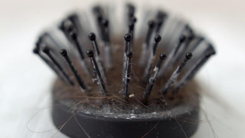 brudna szczotka do włosów /© Photogenica