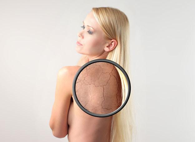 By skóra mogła odetchnąć, nie trzeba ryzykować jej przypieczenia /123RF/PICSEL
