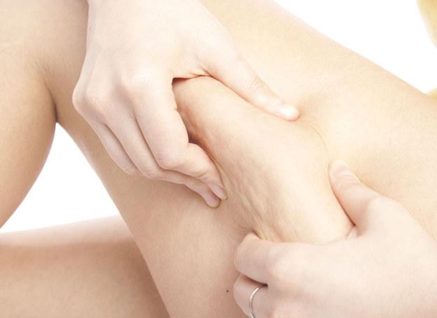 Cellulit jest zmorą wielu kobiet /123RF/PICSEL