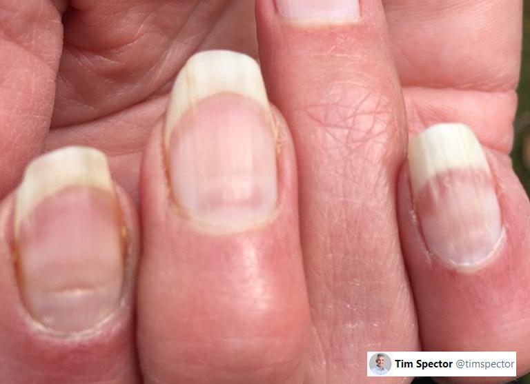Charakterystyczne zmiany na paznokciach mogą świadczyć o zakażeniu koronawirusem /Twitter/@timspector /INTERIA.PL