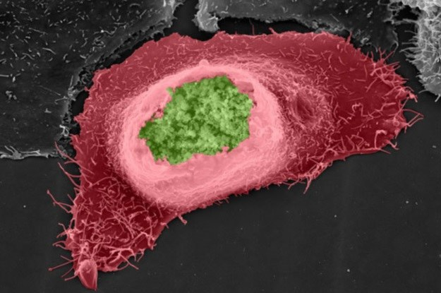 Chlamydia trachomatis (zielona) w komórce gospodarza (czerwona) /materiały prasowe