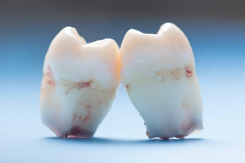 Chłopcu usunięto aż 232 zęby! (zdjęcie ilustracyjne) /Maximilian Schönherr    /PAP/EPA