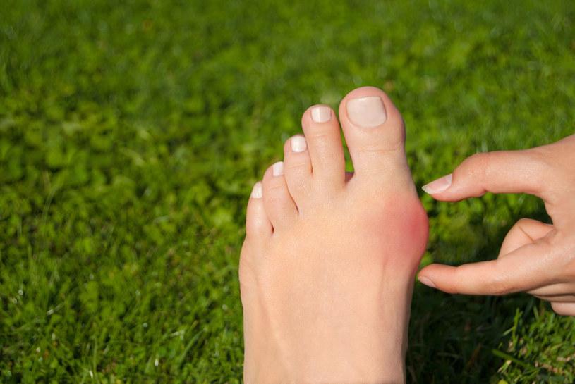 Chodzenie boso to dobre ćwiczenie, ale pamiętaj, by chodzić jedynie po miękkiej powierzchni, jak np. piasek, trawa, gruby dywan /123RF/PICSEL