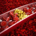 Cholesterol: Dlaczego warto go często badać?