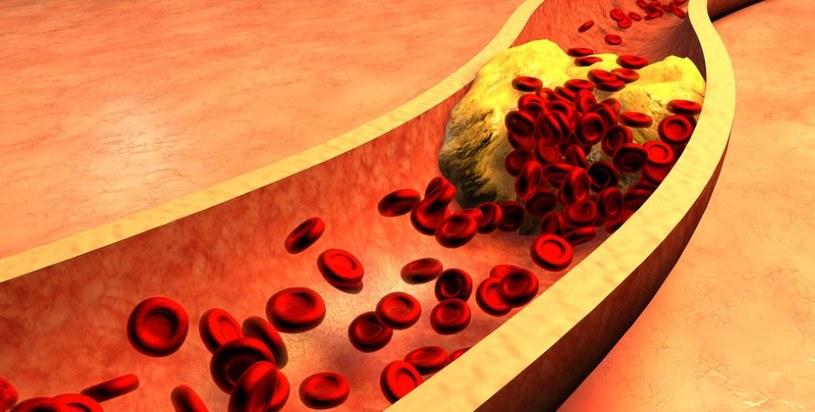 Cholesterol LDL szkodzi /123RF/PICSEL