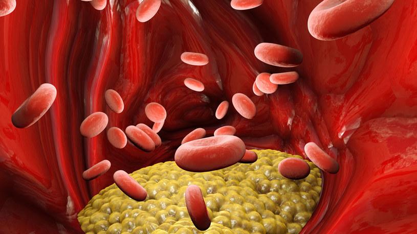 Cholesterol może odgrywać ważną rolę w rozprzestrzenianiu się SARS-CoV-2 /123RF/PICSEL