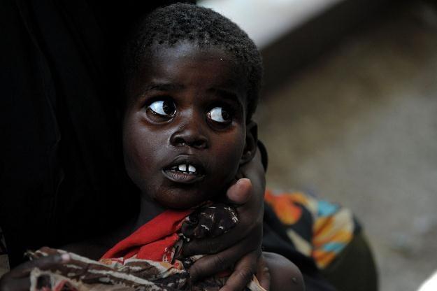 Chore dzieci są izolowane od rodzin i prześladowane /AFP