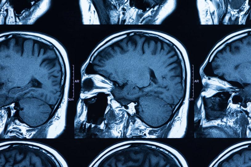 """Choroba Alzheimera nazywana jest też """"przedstarczym zanikiem mózgu"""" /123RF/PICSEL"""