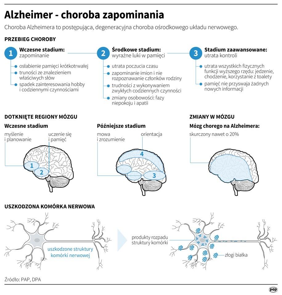 Choroba Alzheimera rozwija się stopniowo i uszkadza mózg /Infografika /PAP/DPA