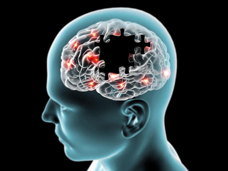 Choroba Alzheimera /©123RF/PICSEL