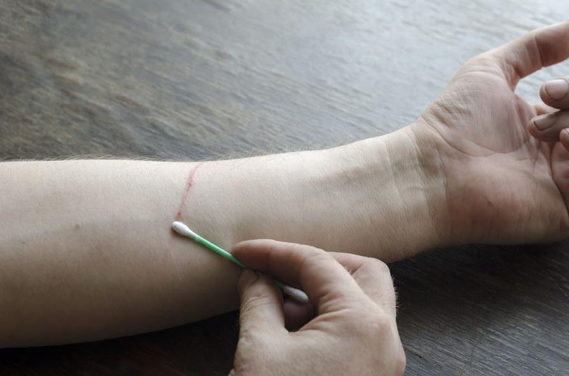 Chorobą kociego pazura można zarazić się poprzez zadrapanie przez zainfekowane zwierzę /123RF/PICSEL