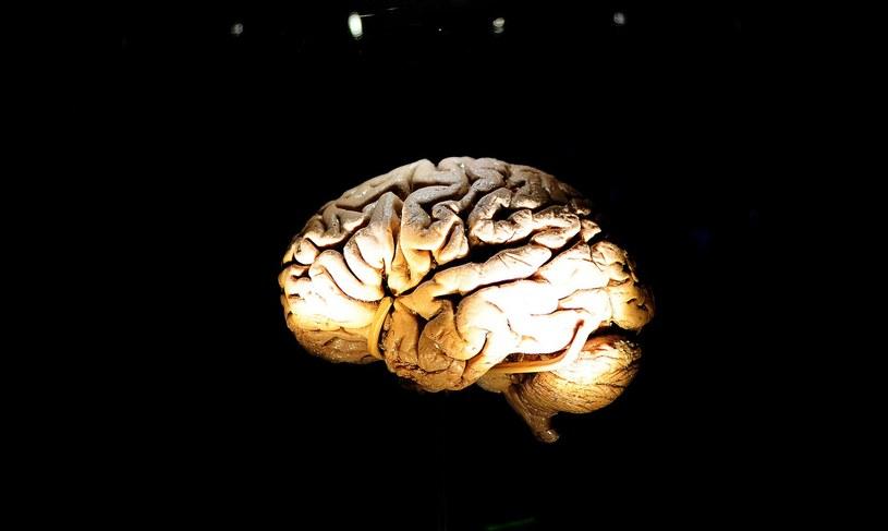 Choroba Parkinsona powoduje obumieranie neuronów produkujących dopaminę /AFP