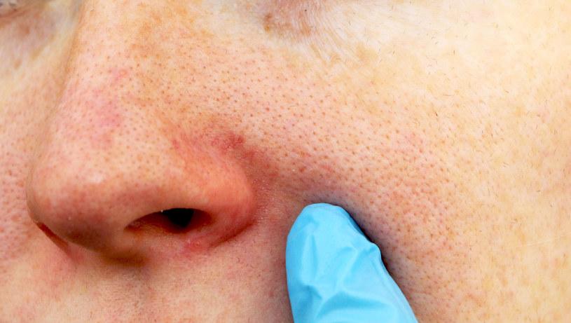 Choroba ujawnia się w dojrzałym wieku. Nasila się zazwyczaj w okresie przekwitania /123RF/PICSEL