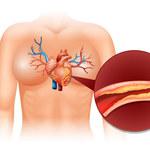Choroba wieńcowa: Przyczyny, objawy i leczenie