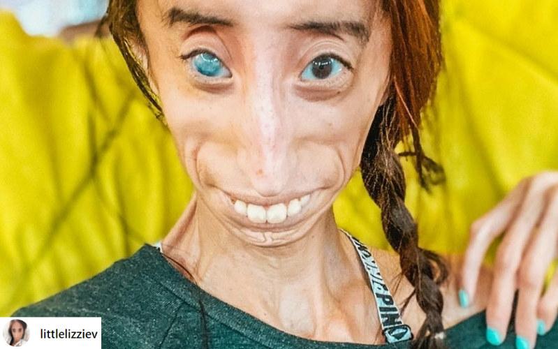 Choroba wpłynęła na jej wygląd, ale nie odebrała radości z życia /instagram.com/littlelizziev /Instagram