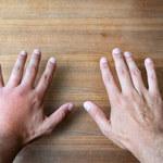Choroby, które widać na dłoni