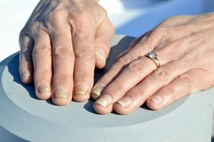 Choroby, które widać na paznokciach. Schorzenia paznokci
