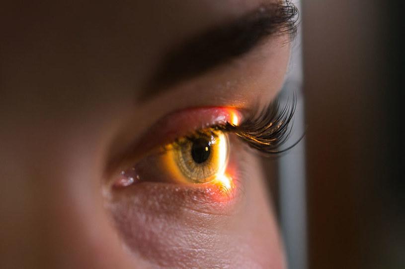 Choroby oczu /©123RF/PICSEL
