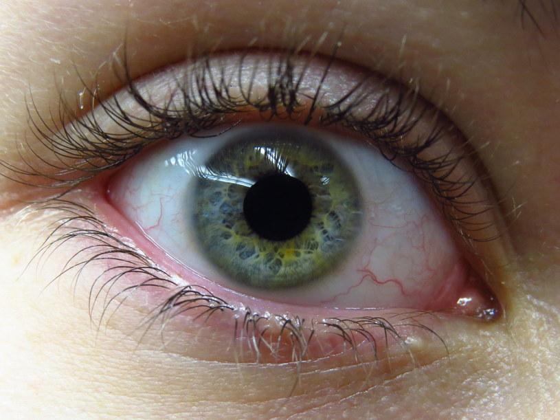 choroby oczu /© Photogenica