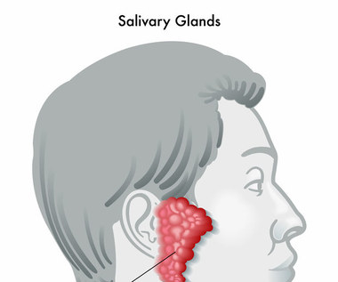 Choroby ślinianek: Przyczyny, objawy i leczenie