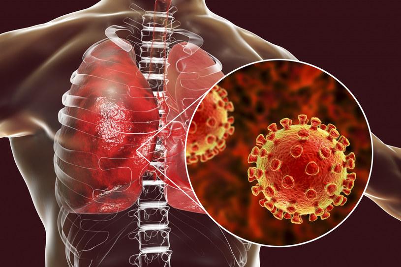 """""""Choroby wirusowe są szczególnie niebezpieczne z dwóch powodów. Po pierwsze nie można leczyć ich antybiotykami, a po drugie - wywołujące je patogeny szybko mutują, co widać choćby po grypie sezonowej"""" /Kateryna Kon /East News"""
