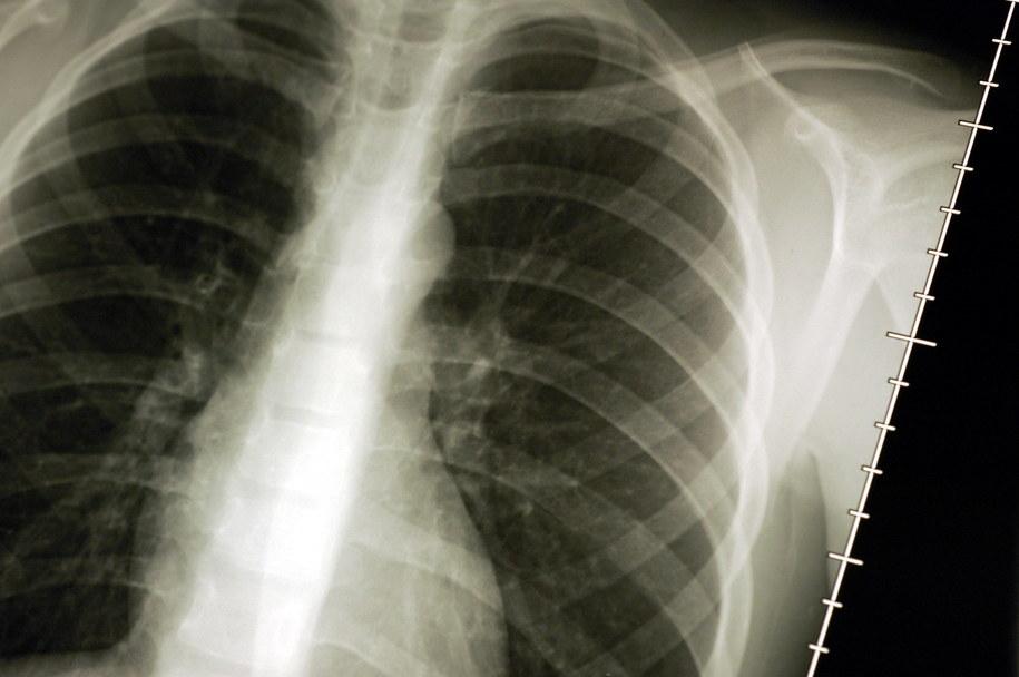 Chorzy na raka płuca alarmują: Jest problem z finansowaniem terapii /CARO LAURENT /PAP/Photoshot