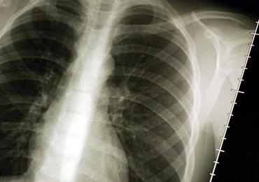 Chorzy na raka płuca alarmują: Jest problem z finansowaniem terapii