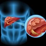 Ciche objawy raka wątroby