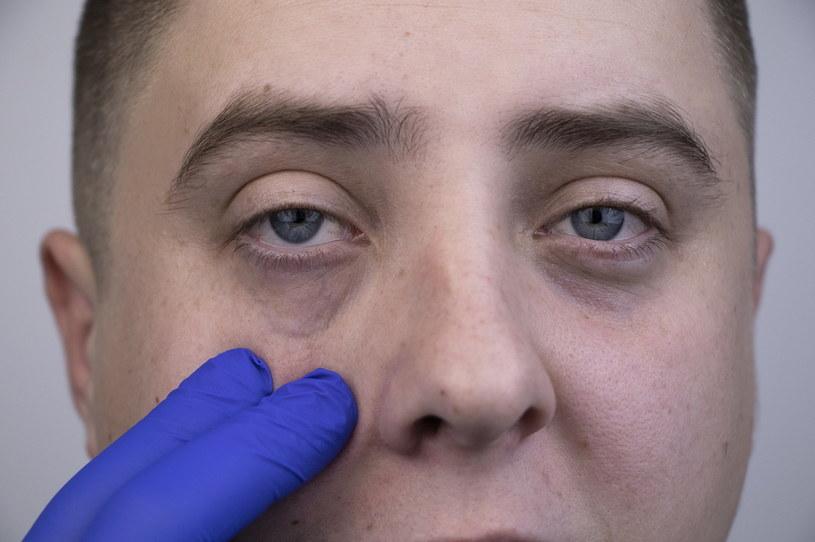 Ciemne ślady pod oczami to nie tylko defekt kosmetyczny. Mogą wskazywać na poważniejsze schorzenie /123RF/PICSEL