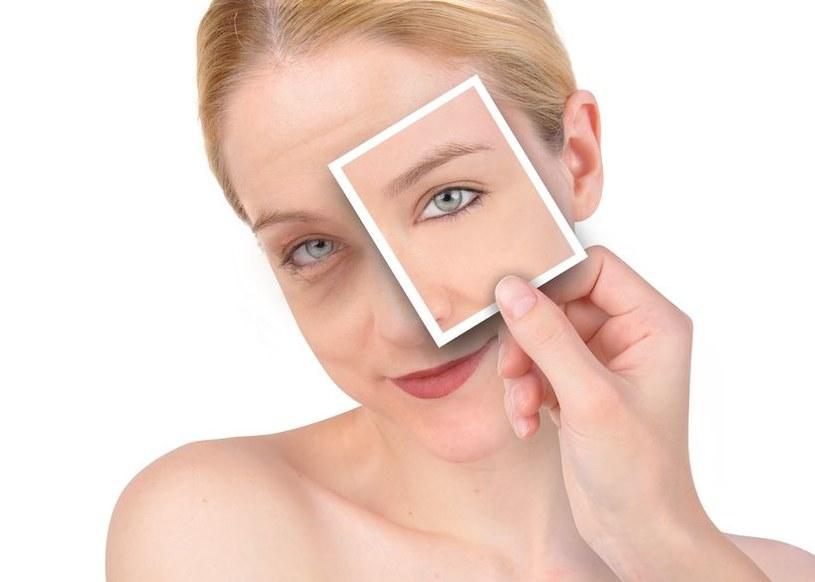 Cienie pod oczami mogą być objawem choroby /123RF/PICSEL