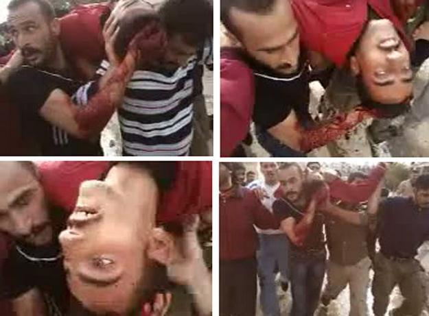 Ciężko ranny uczestnik demonstracji w mieście Hama /AFP