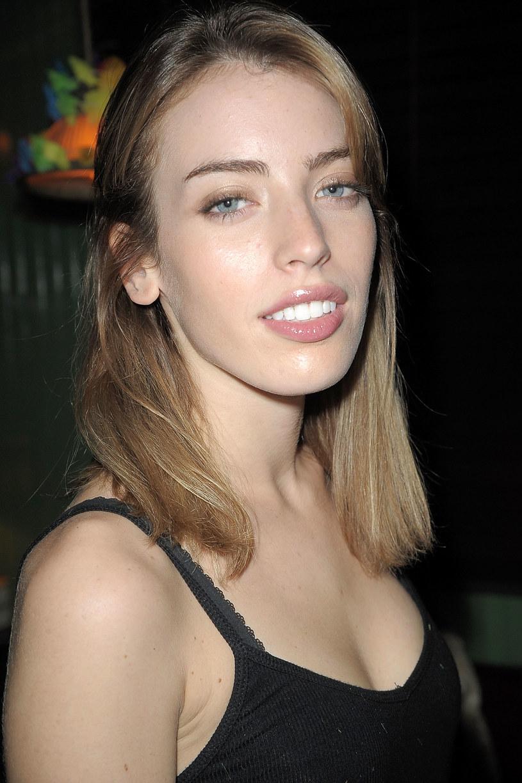 Clara McGregor uległa wypadkowi, w wyniku którego ucierpiała jej twarz /Chance Yeh /Getty Images