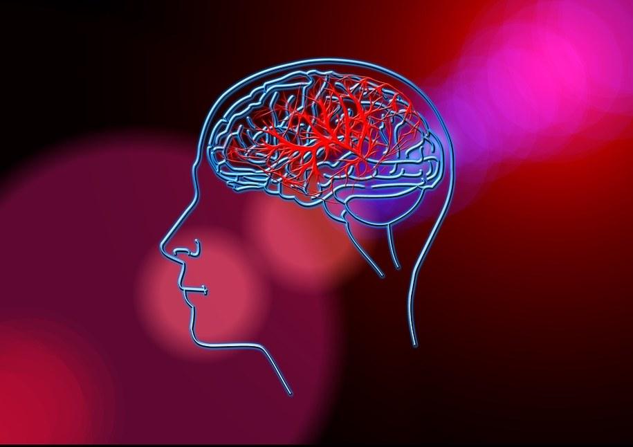 Co 8 min. w Polsce ktoś doznaje udaru niedokrwiennego mózgu. Zdj. ilustracyjne /Pixabay