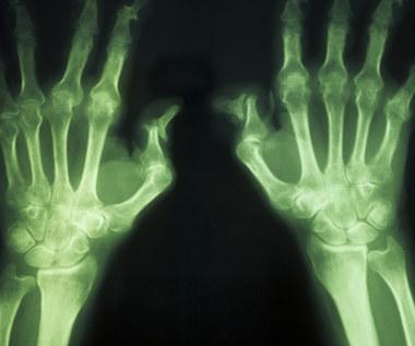 Co jeść na artretyzm?