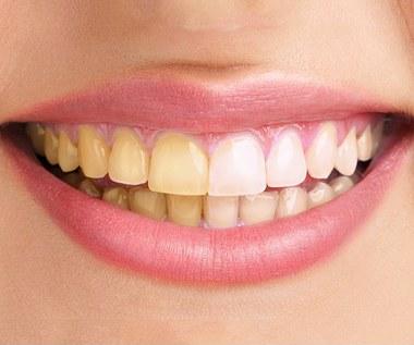 Co jest przyczyną żółtych zębów?