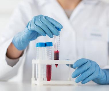 Co mówi o nas grupa krwi? Jak wpływa na zdrowie?