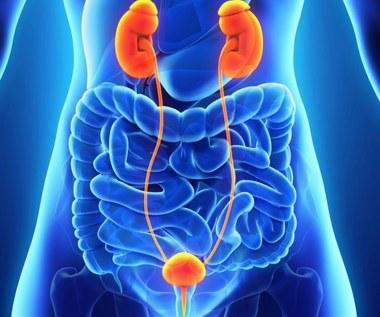 Co musisz wiedzieć na temat nowotworu pęcherza moczowego?