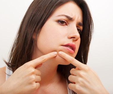Co niedoskonałości na twarzy mówią o twoim zdrowiu?