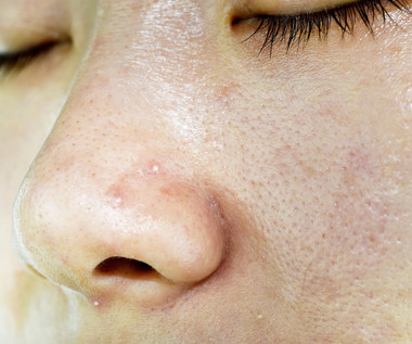 Co oznaczają pryszcze na twarzy?